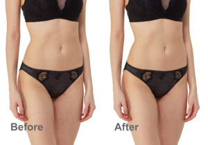 before and after automatic smoothing skin in Photoshop
